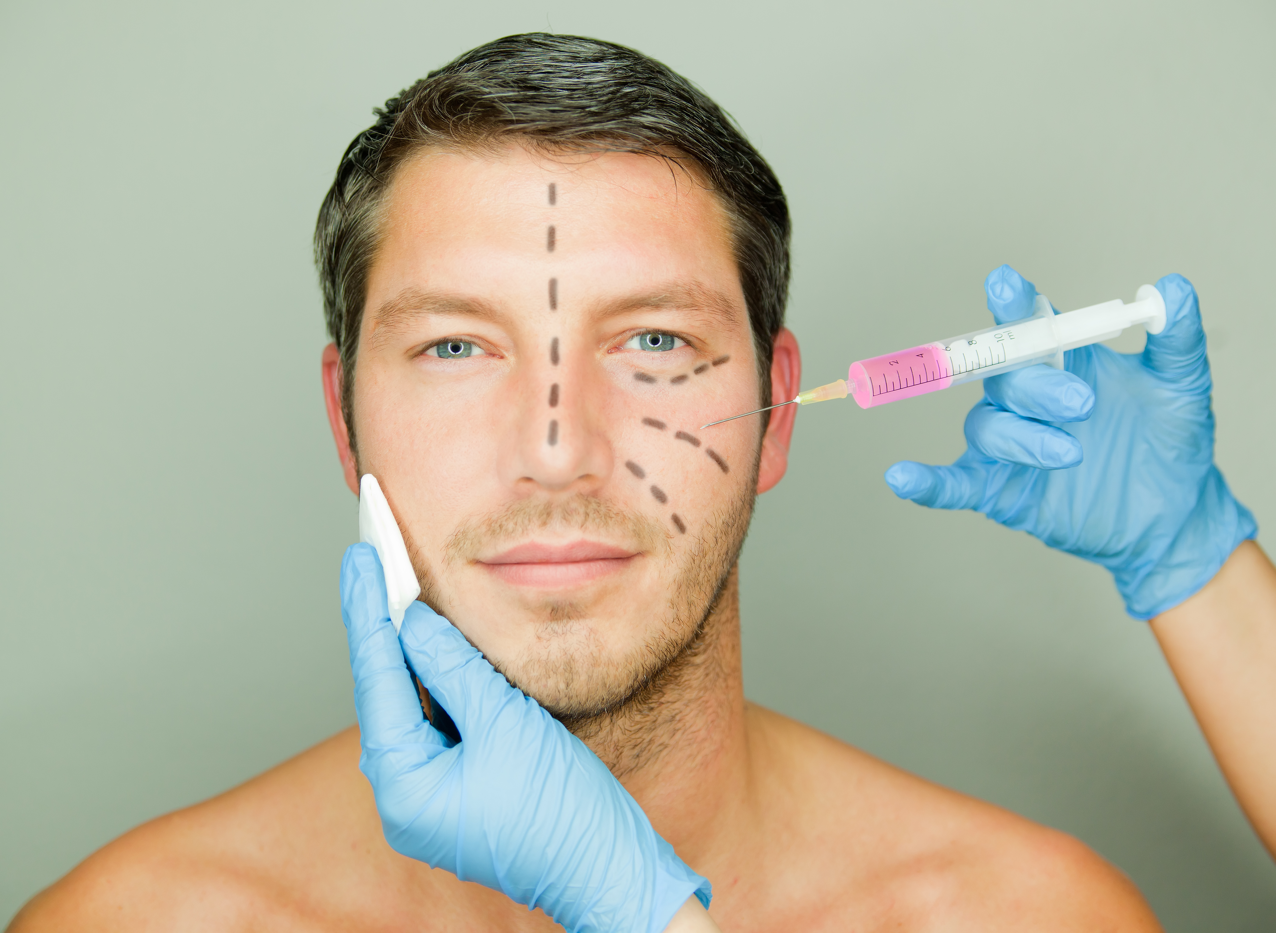 What Is The Perfect Age To Start Taking Botox Injections?